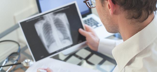Диагностика очагового туберкулеза легких