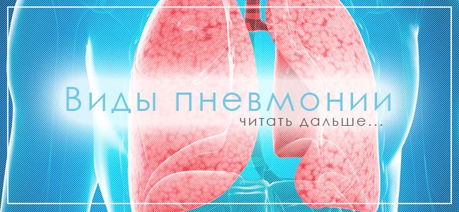Читать дальше про виды пневмонии