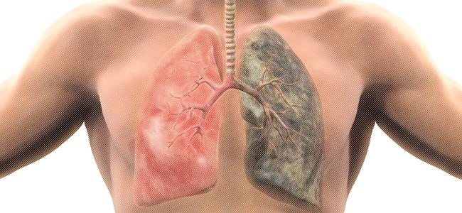 Симптомы и лечение туберкулеза легких у взрослых