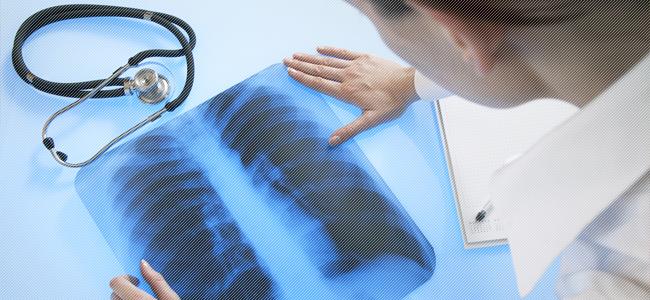 Сколько лечится туберкулез легких у детей и взрослых
