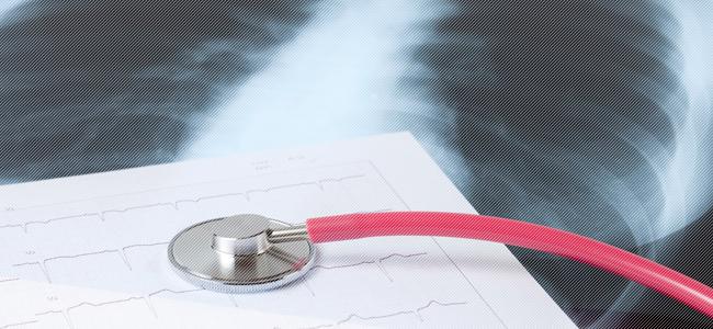 Закрытая форма туберкулеза: Опасна для окружающих и как передается