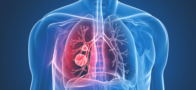 Дифференциальная диагностика туберкулеза легких