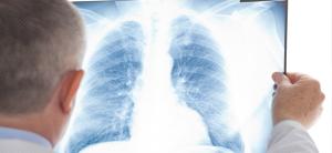 Лечение пневмонии в стационаре